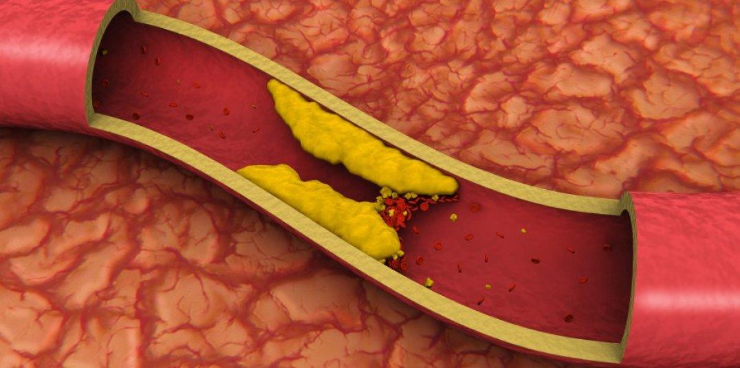 colesterol-murcia